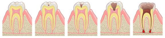虫歯についての図解