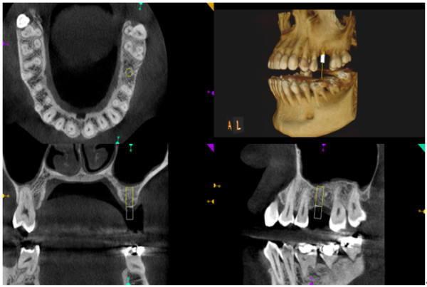 インプラント術前の診断